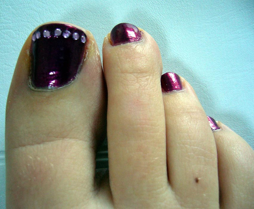 please click for next toe zone gallery image